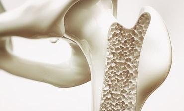 Bone fracture risksBone fracture risks